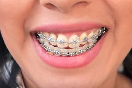 стоматология харьков клиника SV Dent