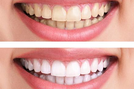 семейная стоматология харьков SV Dent